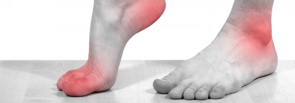 Plantar Fasciitis Denver CO